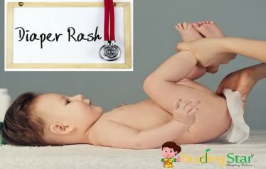 8 Effective Home Remedies For Diaper Rash In Babies