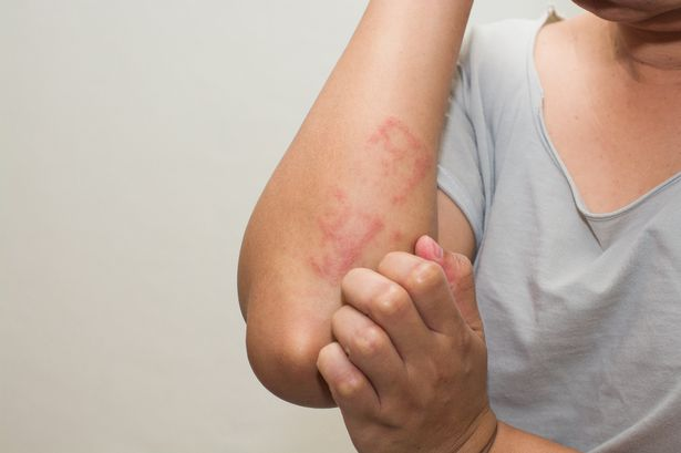 How Parents Can Manage Psoriasis in Children